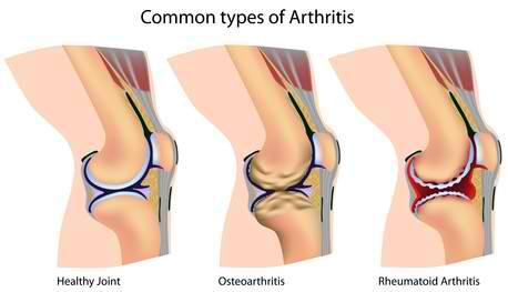 остеоартрит добавки