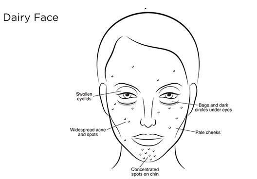молочное лицо