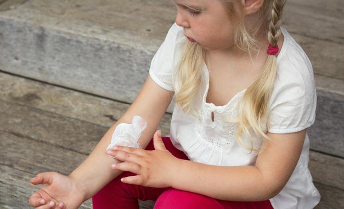 крем при атопическом дерматите какой