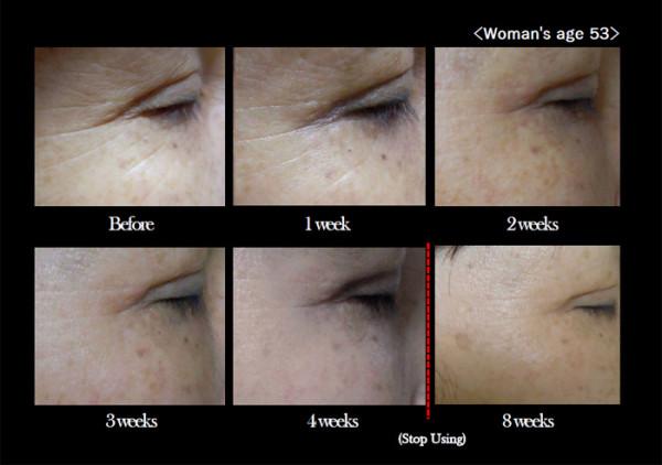 Smart Filler Patch for Eye Wrinkle-7