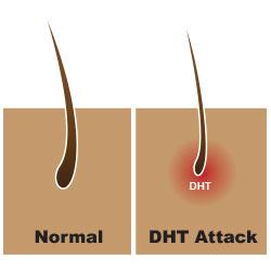 дигидротестостерон DHT действует на волосы
