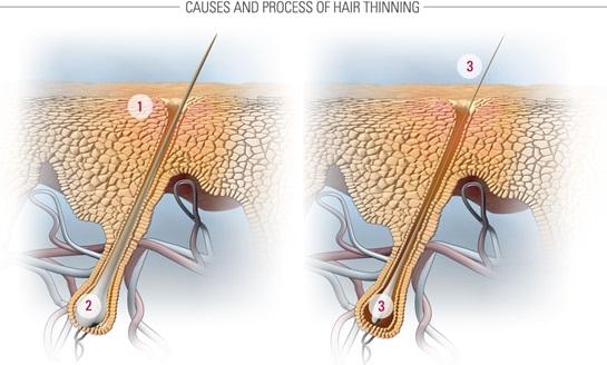 микровоспаление и фиброз кожи головы