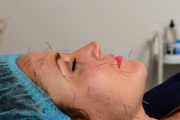 эффект ботокса иглоукалывание для лица