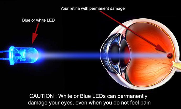 синий свет повреждение глаз